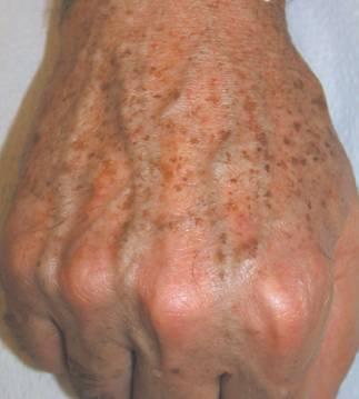 El medio tonal para la piel con las pecas